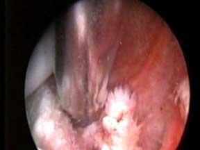 جراحي-آرتروسكوپی-شانه-2
